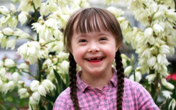 Dijete s Downovim sindromom
